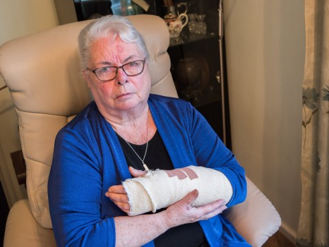 Pensioner had chunk bitten out of her arm by dog