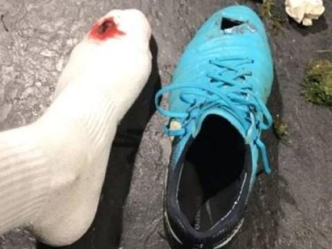 Antonio Rudiger reveals nasty foot injury after Chelsea's win over Swansea