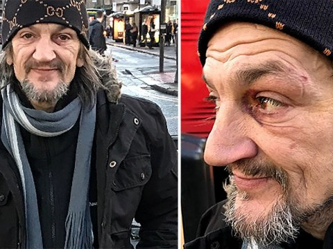 Homeless busker attacked by thieves who stole his guitar
