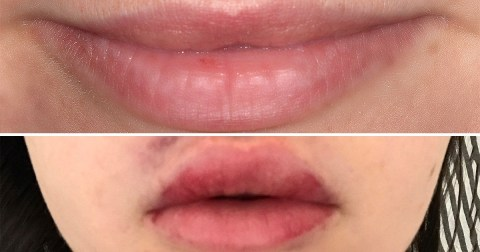 Lip fillers: are they worth the money, pain and hassle