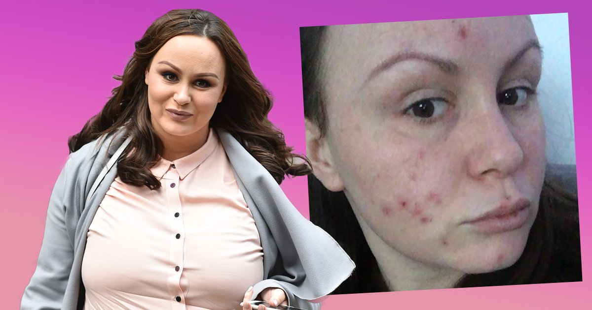 Chanelle Hayes pleads for help over mystery skin condition that's 'killing her confidence'