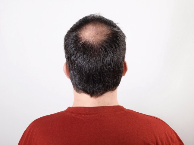 Scientists may have discovered a cure for hair loss | Metro News
