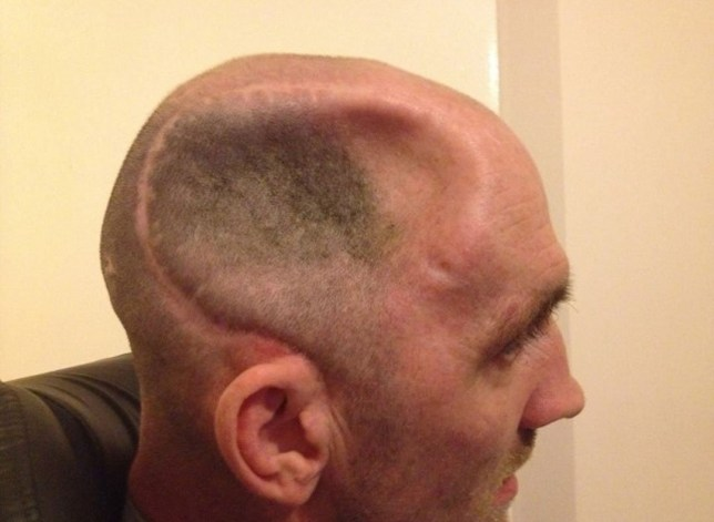 Daughter shares pictures of dad's brain damage caused by one punch