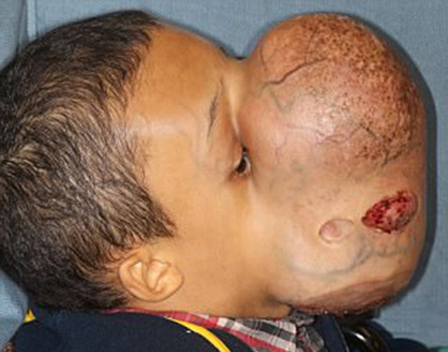 Boy dies after having surgery to remove 10lb tumour from his face