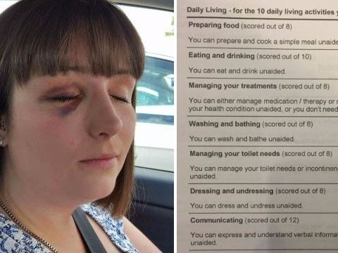 Woman with epilepsy so severe she set herself on fire sees benefits removed