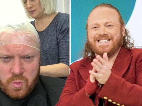 Keith Lemon has gone bald and we don't know what to think