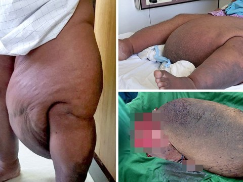 Man left bed bound after mosquito bite caused two stone growth
