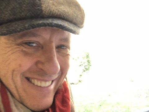 Richard E. Grant sports 'Peaky Blinders cover-up' after being hospitalised with head wound