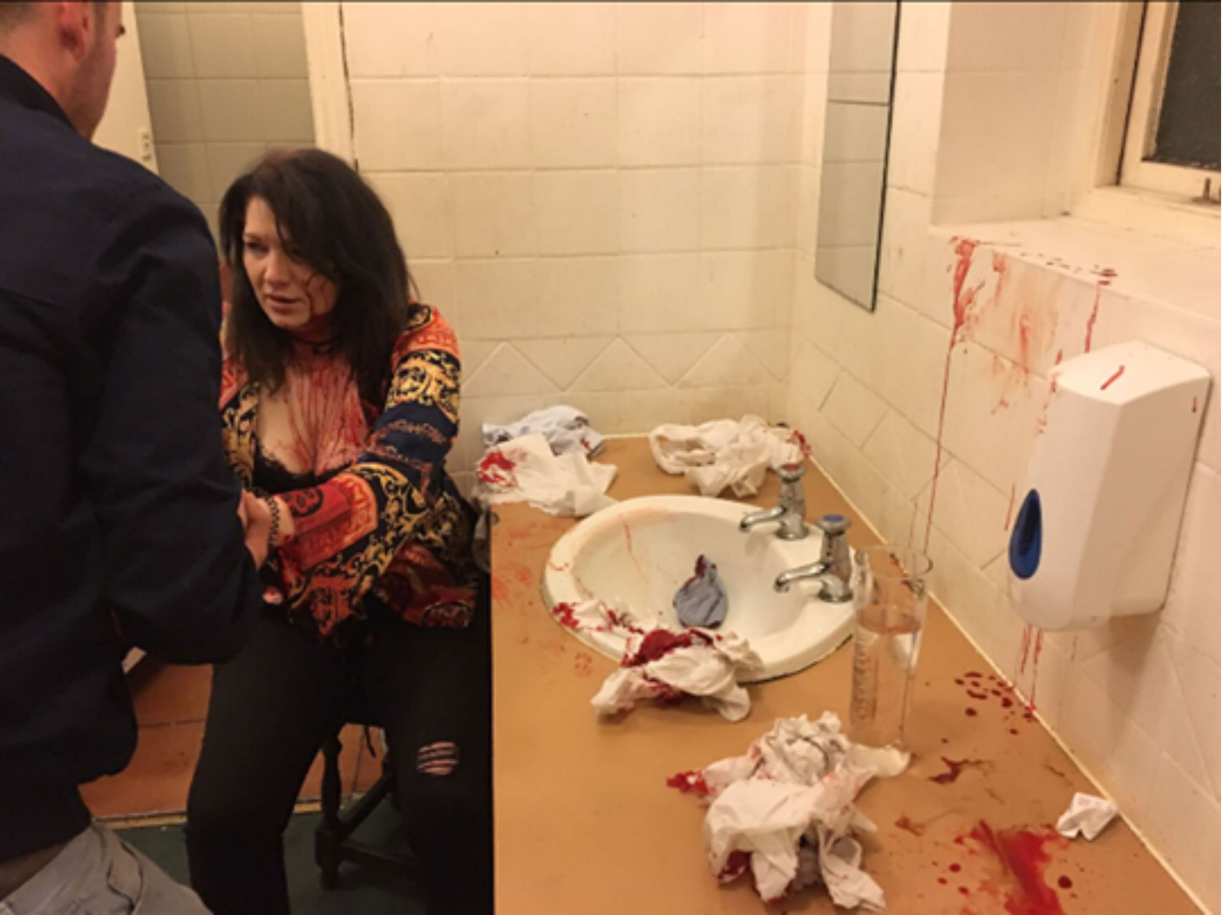 A MOTHER has shared horrific images of the head injuries she suffered after she was attacked in a pub toilet by a jealous girlfriend. Anne-Marie Szwed had her head smashed off a sink five times by a woman in apparent revenge for attracting her boyfriend's attention. The mum-of-one needed a gaping wound in her scalp held together by paramedics as she was taken to hospital. The attack, on Friday night at a pub in Coventry, left the bathroom covered in blood. The sickening assault happened after the attacker watched her boyfriend look at Anne-Marie as she walked to the toilet at The Oak Inn in the city centre.