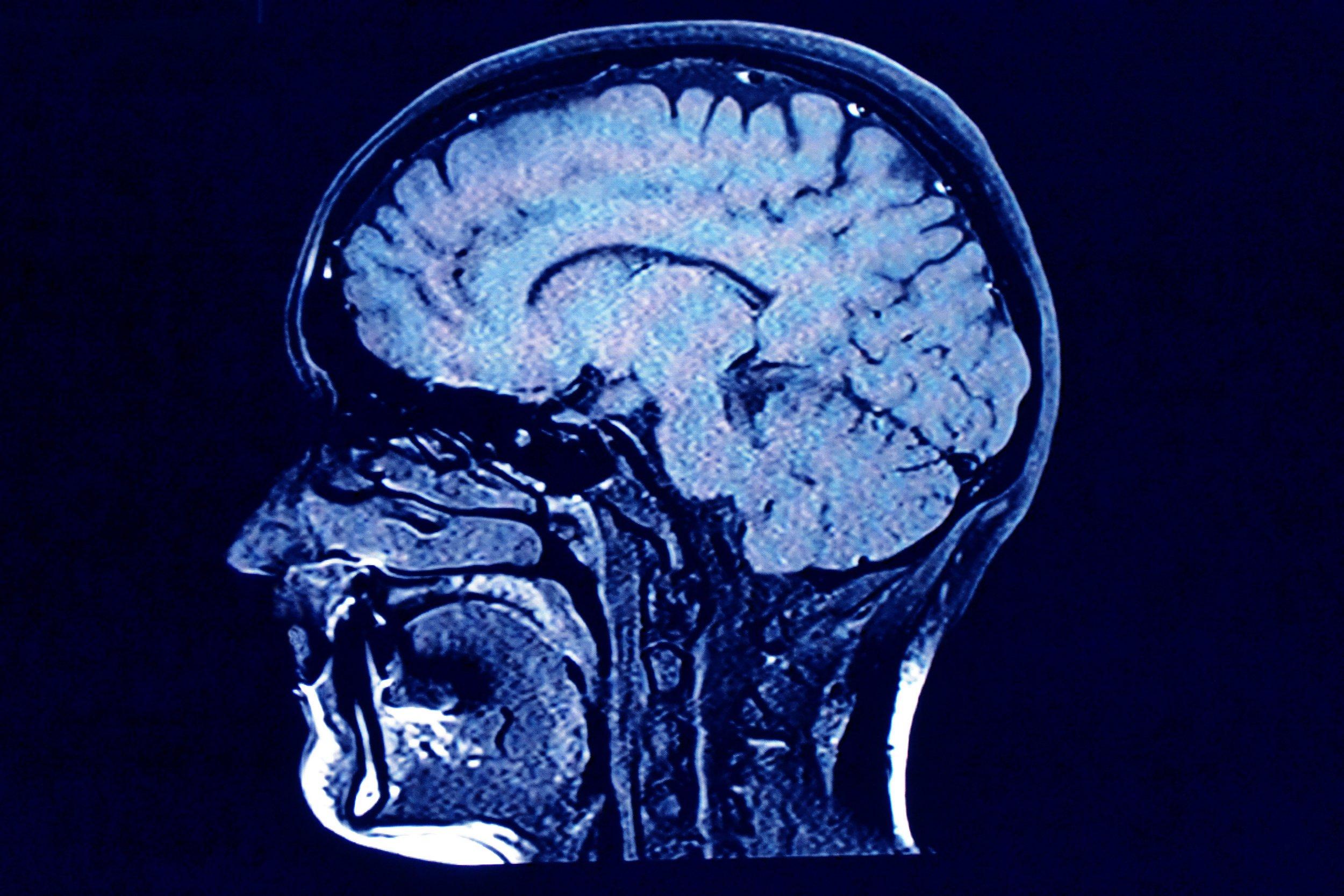 Human head scan, x-ray.
