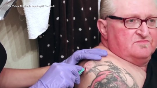 If you're into spot popping videos this cyst eruption is