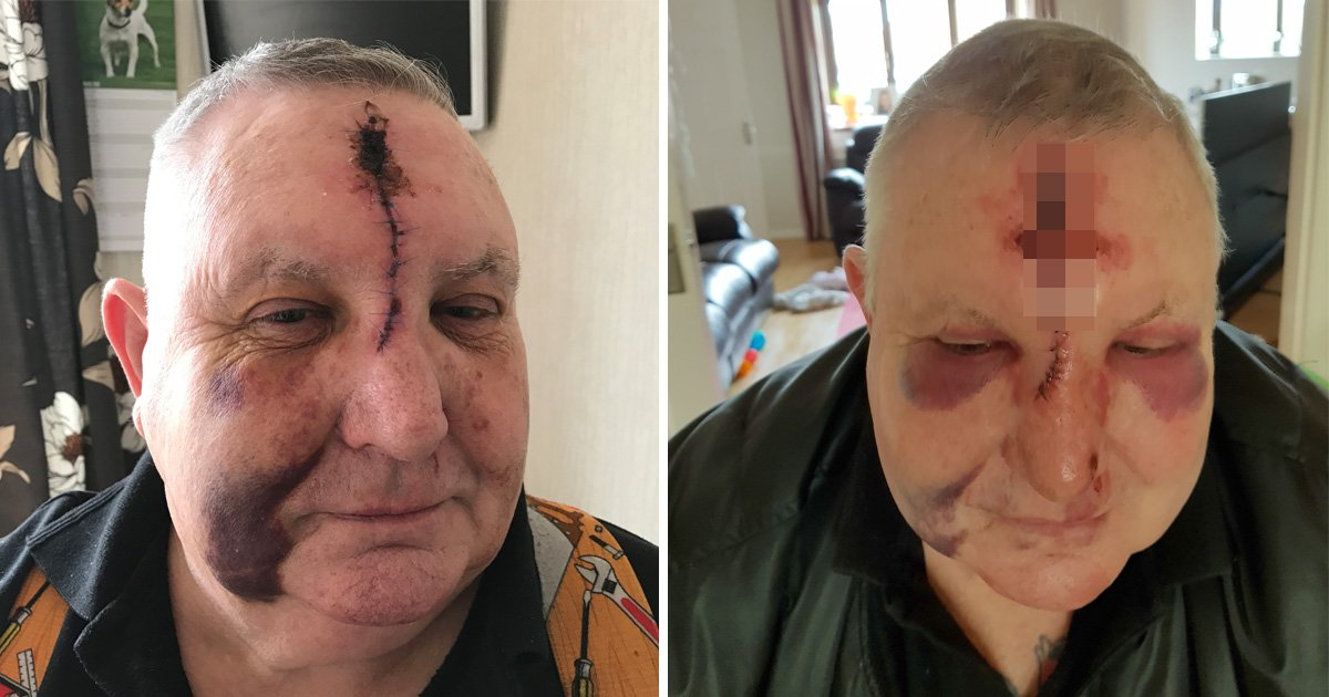 Manhunt for driver whose road rage attack left pensioner looking like this