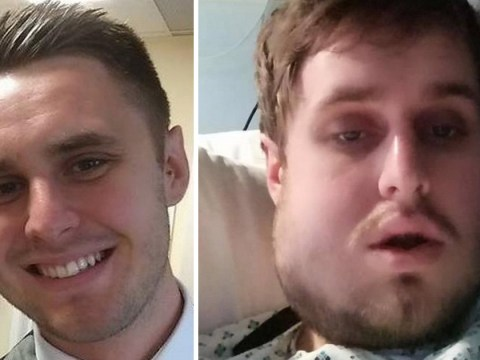 One punch attack left man with broken jaw and forced to eat through a straw