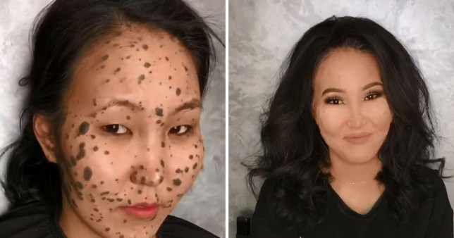 This amazing make-up footage shows a woman born with moles all over her face and body being transformed into a smooth-skinned beauty