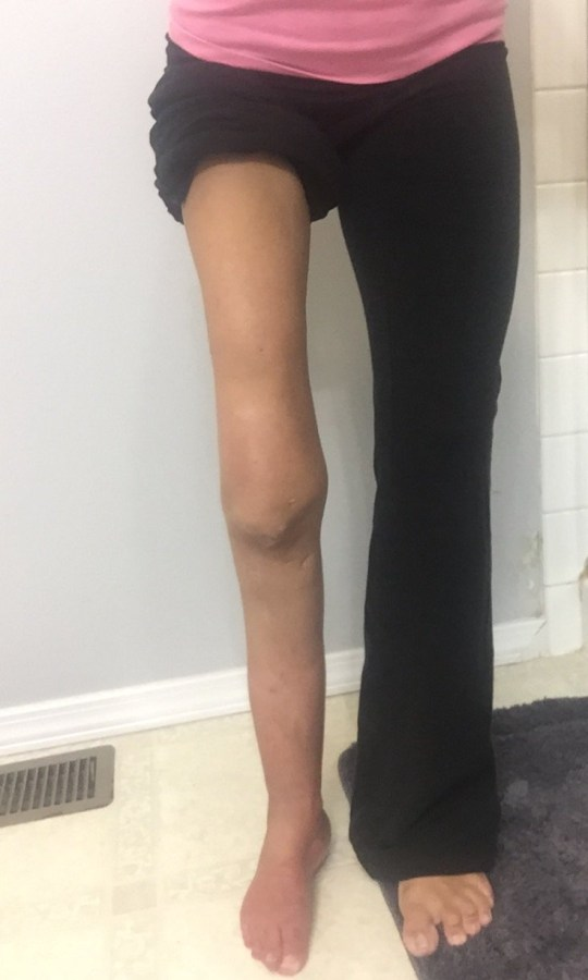 Woman whose leg stopped growing says amputation gave her a