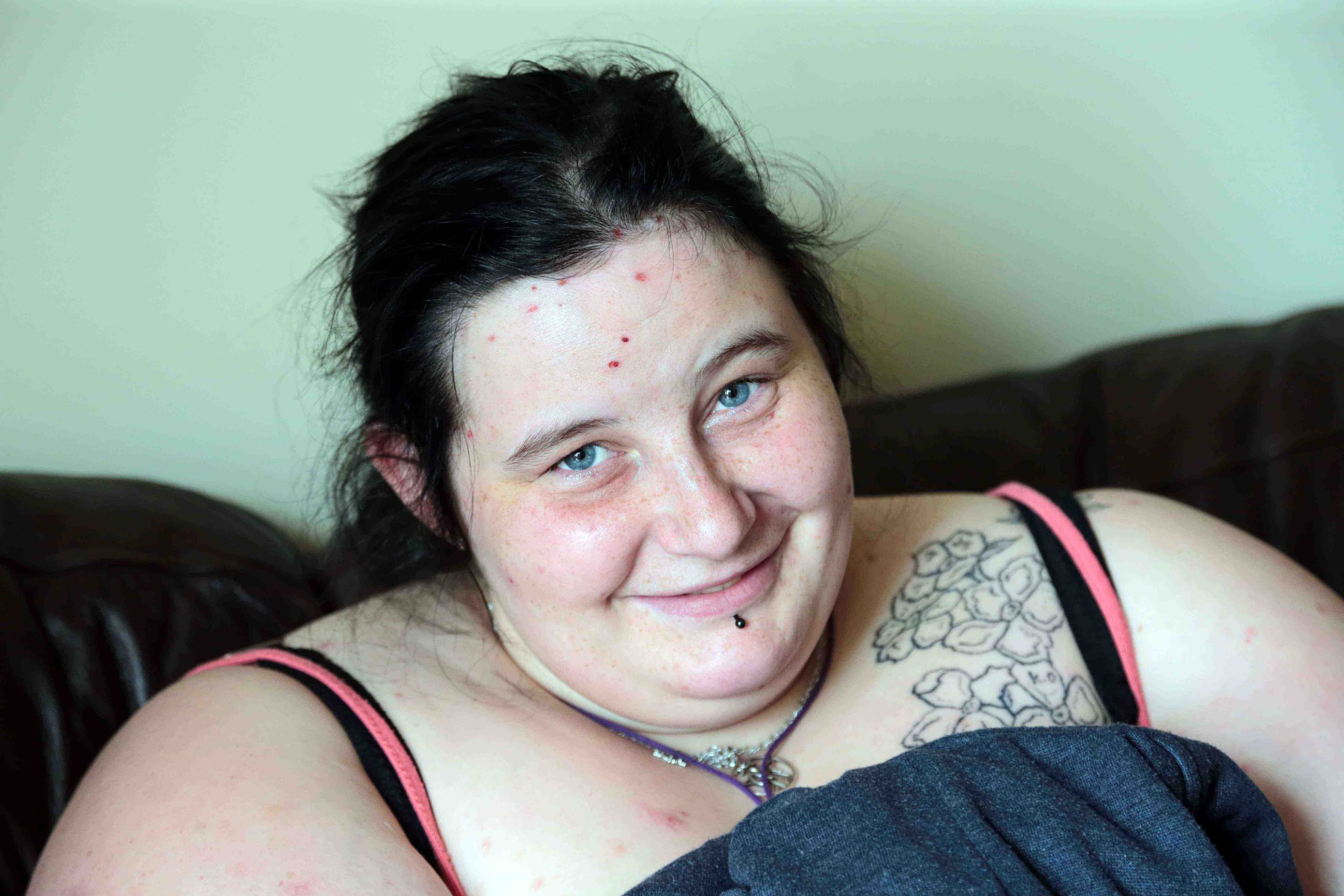 Rhiannon Scott from Bryn Teg, Wrexham. Showing her bruises, was rescued by emergency services from a submerged tent whilst camping in Waunfawr near Caernarfon in the early hours of last Tuesday. Showing a happy face that she ok after surviving her ordeal.