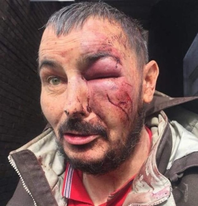 A man with just months left to live was brutally attacked by a gang of youths as he walked to a Chinese takeaway. Mark Walker was left battered and bruised, with a trainer mark on his face, after he was kicked and punched by the mob in Berwick Hills on Friday night. The 48-year-old, who is barely able to walk, left his home to buy a takeaway from the parade of shops at Norfolk Place. But he never made it and was set on by around six teenagers in an alley at the side of Pallister Park, just metres from his home. A photo of Mr Walker?s injuries show a severely swollen eye, and cuts and bruises all over his face. CAPTION MARK WALKER