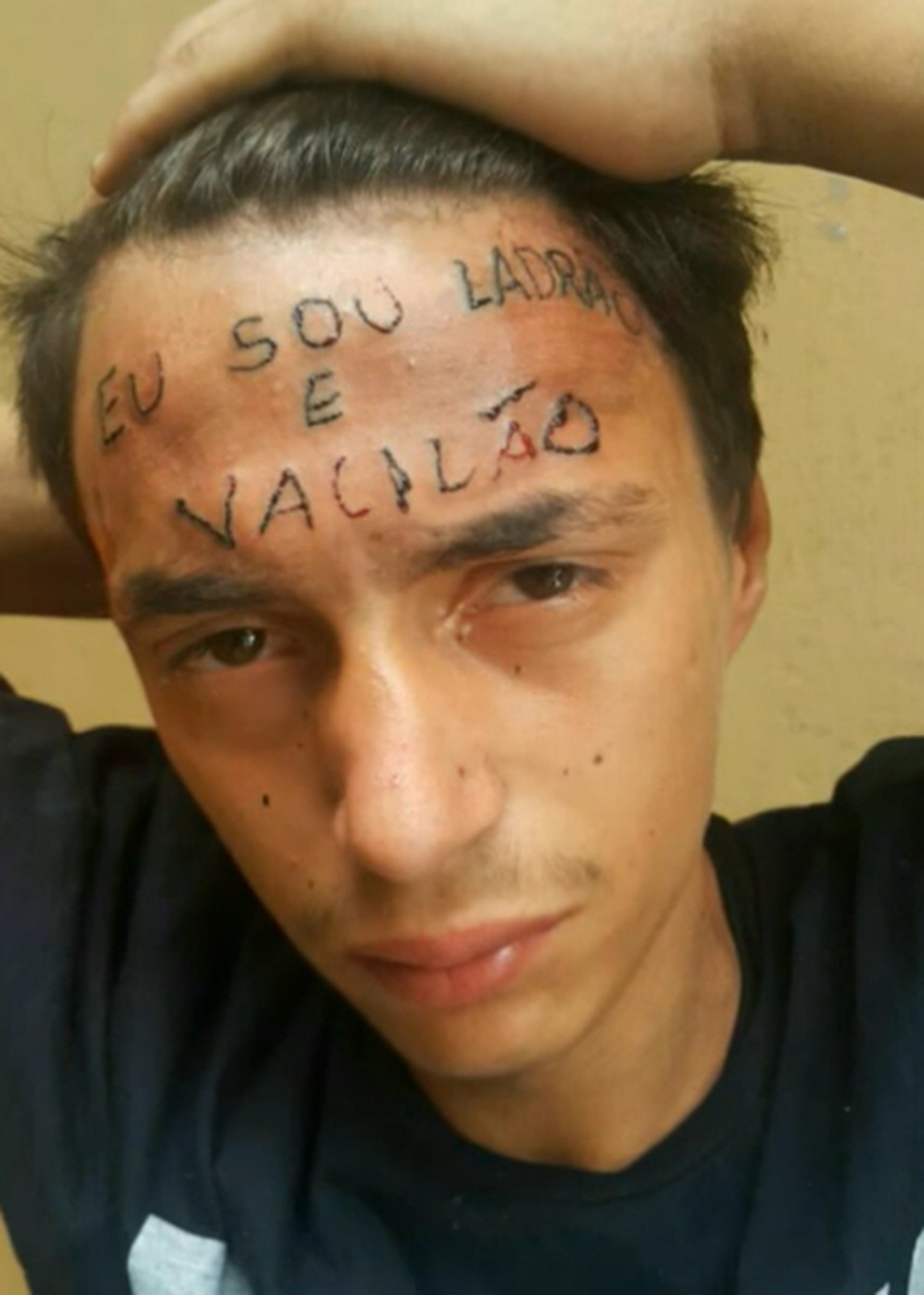 "Pic shows: The thief with his brand new tattoo. A teenager who was forced to have ""I am a thief and an idiot"" inked across his forehead has been arrested for stealing one year after the tattoo was etched into his skin. 18-year-old Ruan Rocha da Silva was allegedly caught stealing five cans of deodorant from a supermarket and arrested by Military Police in the Maripora area of Sao Paulo, the Brazilian city in the state of the same name. Silva made headlines last year after two men were arrested for torturing him by tattooing his forehead as a punishment for allegedly trying to steal a bike. Tattoo artist Maycon Wesley Carvalho, 27, and neighbour Ronildo Moreira de Aruajo, 29, were both found guilty by a judge, with Carvalho given a sentence of three years and four months in prison and Aruajo three years and five months. The two were caught by police after filming themselves inking the tattoo and sending the images to friends. In the video, Carvalho can be heard saying: ""It is going to hurt, it is going to hurt."" In the most recent case, Silva was caught by a shop assistant allegedly stealing the deodorant and taken to a police station. Silva was arrested for stealing but he was released after paying the 1,000 BRL (213 GBP) bail and is awaiting trial. A cousin of the alleged thief told reporters that Silva???s shoplifting was down to a relapse into drug use. Silva??? lawyers had told the judge in the tattoo case that Silva had been addicted to crack cocaine and alcohol and was receiving treatment. Local media reported he went to a rehab centre in Sao Paulo earlier this year. (ends)"