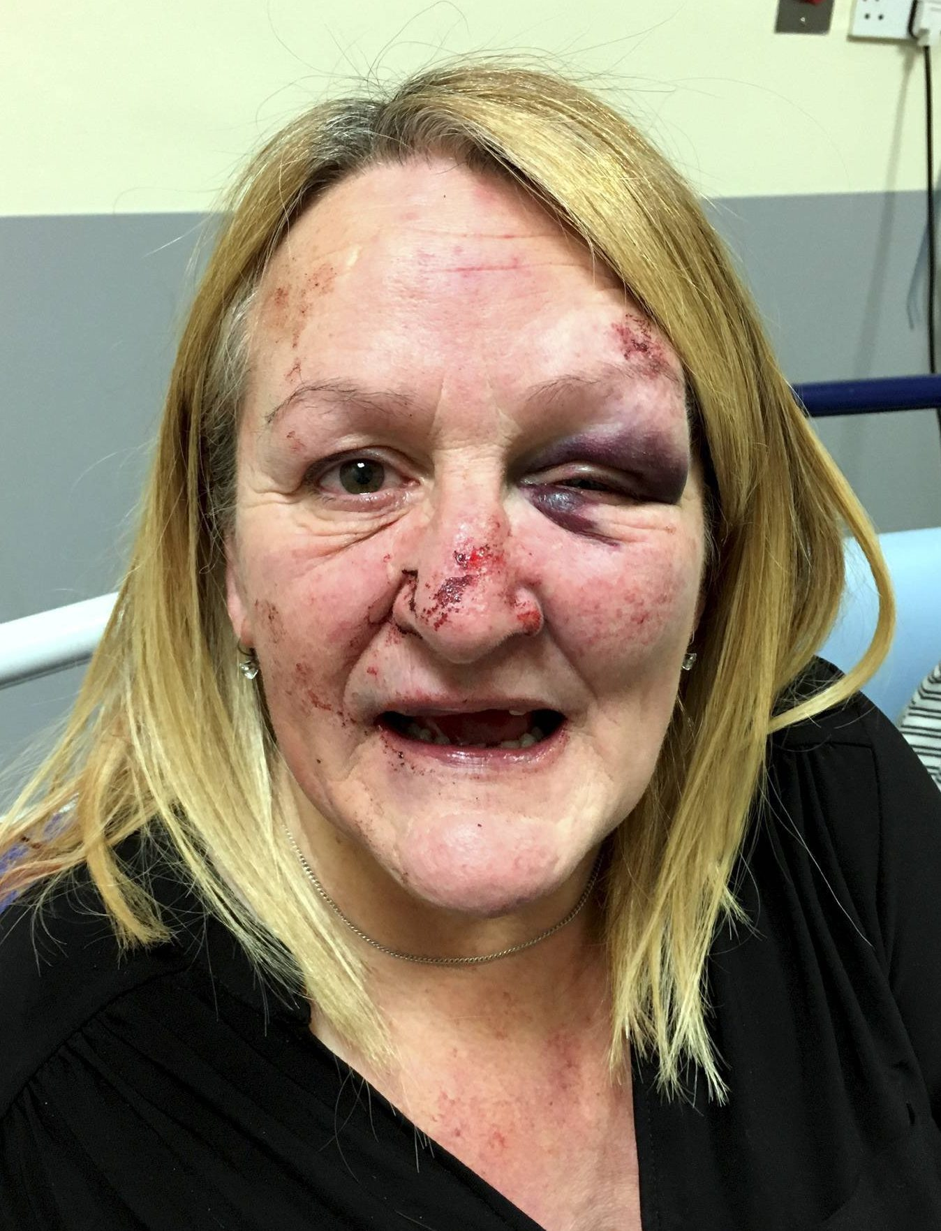 Dated: 26/03/2018 WOMEN REVEAL SHOCKING INJURIES FROM UNPROVOKED STREET ATTACK - IN BID TO CATCH ASSAILANT .. Diane Brown, 53, who was beaten and left unconscious with broken front teeth following an unprovoked attack on her and her friend, in Newton Aycliffe, County Durham last Friday evening (MAR 23). Diane and her friend have spoken out about the assault, in a bid to help police catch the assailant. SEE COPY FROM NORTH NEWS