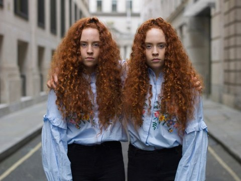 Photographer captures the little differences between identical twins