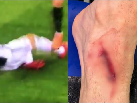 Mario Mandzukic shows off gruesome wound picked up during epic 3-2 win vs Inter