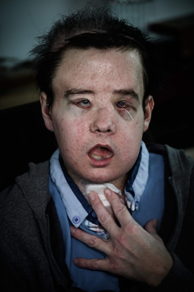 Jerome Hamon, the first man in the world to twice undergo a face transplant after flu tablets incompatible with his anti-rejection treatment led to the first attempt to fail, poses on April 13, 2018 at the Hopital Europeen Georges-Pompidou in Paris. / AFP PHOTO / Philippe LOPEZPHILIPPE LOPEZ/AFP/Getty Images
