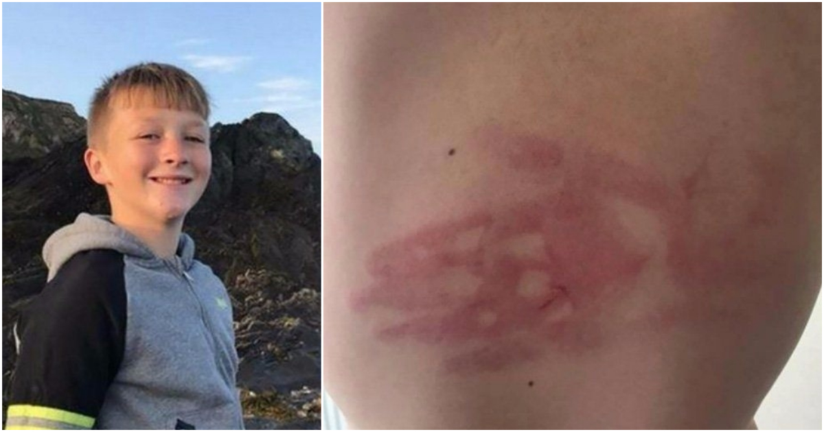 Bullies left hand print on boy's back after targetting him for two years