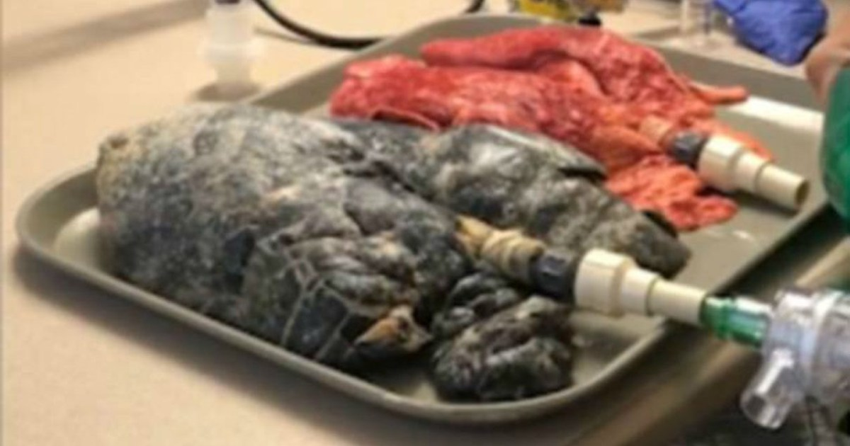 Nurse Shares Video Showing Just How Bad Smoking Affects Your Lungs Metro News