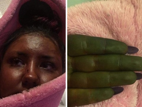 Woman left looking like Shrek after her fake tan went seriously wrong