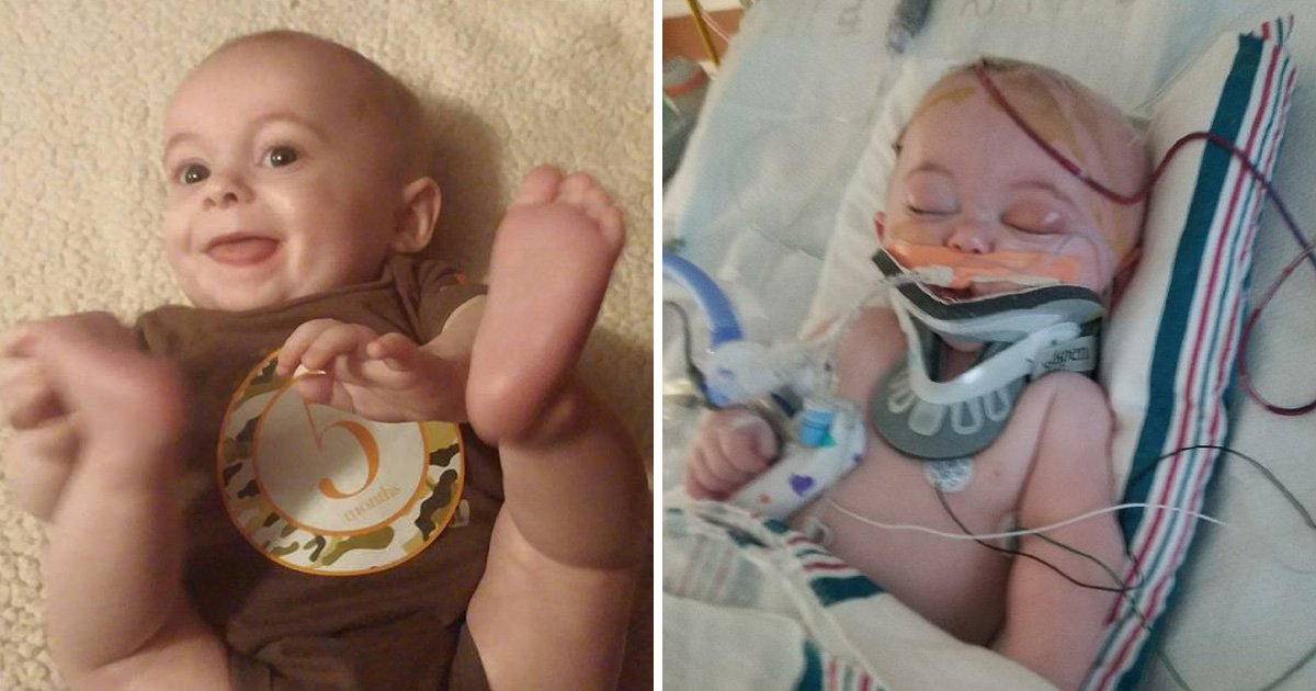 Baby bled half his blood into his brain and fractured his skull after rolling off bed