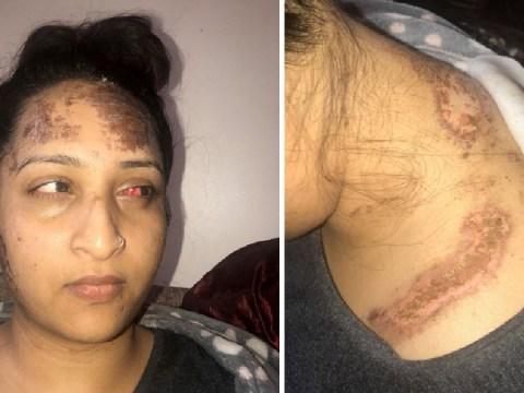 Woman's severe burns after 'schoolboy' lobbed a bottle of acid at her