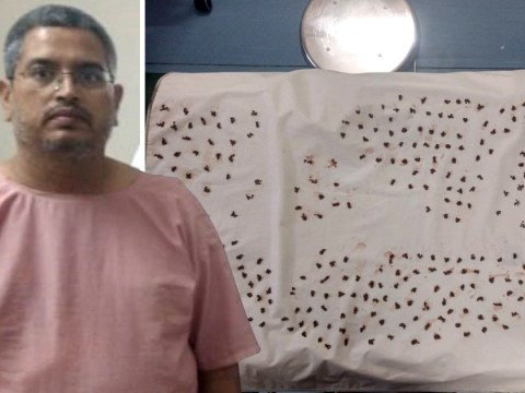 Man has 4,100 gallstones removed from body