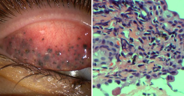 Grim photos of what happens when you don't remove your mascara