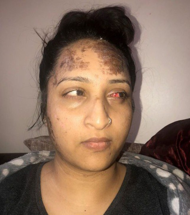 "Afiya Begum, she claims she was the victim of an acid attack at her flat. A woman suffered horrific injuries after having acid thrown in her face outside her Birmingham home - by a suspected schoolboy thug. Afiya Begum, 26, was returning from a petrol station when she was hit by a bottle of hydrochloric acid in the lobby of her apartment building in??Acocks Green??. She was left with painful burns across her face, shoulder, and neck in the random attack - and said she still suffers from blurred vision one month on. Police are hunting the young attacker, who was described as white and aged between 14 - 16. Afiya recalled the chilling moment she was targeted on April 8 as she returned to her flat in Fox Hollies Road. ""I went across the road to the petrol station and I think the person who attacked me was watching,"" she said. ""When I was crossing the road I saw someone get out of a car but didn't think anything of it. ""I was on the phone when I came back into the building. Then a man tapped me on the shoulder and I screamed and dropped my phone onto the floor. ""Then he threw a whole glass of acid at me."" Afiya said her attacker then picked her phone up from the floor and fled."