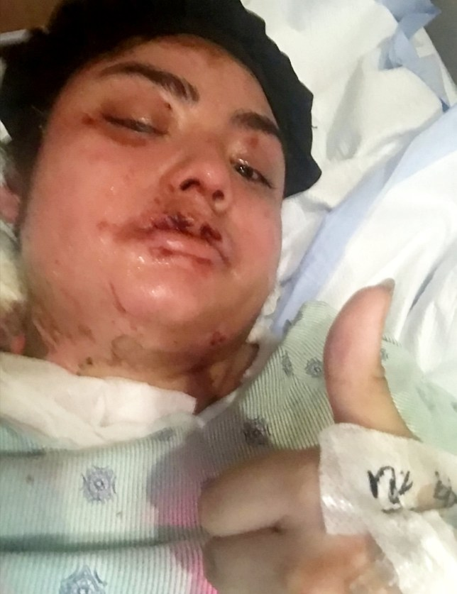 Alma Ponce, 18, was left with burns on her face, neck, arms and chest when she was attacked. A woman left permanently scarred after a mystery attacker wearing a ski mask doused her in acid said she wakes up each morning hoping it was all a dream. See NATIONAL story NYACID. Alma Ponce, 18, was left with second-degree burns on her face, neck and chest when she was attacked on her porch by a man waiting for her to return from work. Alma?s attacker had unscrewed the lightbulb on the then 17-year-old?s porch and waited at the side of the teenager?s home until she returned with her mom Patricia Ponce and brother Luis Ruiz, eight. Alma feared for her life when her attacker threw burning acid all over the left side of her face and chest and said she felt like her skin was ?bubbling and melting?. The man instantly fled as Alma threw herself into a children?s pool in her garden to help relieve the pain before she was rushed by ambulance to hospital. The acid left Alma with permanent scars on her forehead, lips, face and arms as well as her legs and back, where doctors took skin for grafts. While Dallas Police have yet to find Alma?s attacker, the vicious assault is believed to be racially motivated.