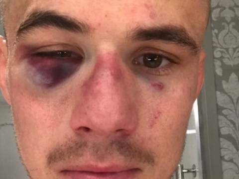Nathaniel Wood shows off battle scars after coming through war on UFC debut