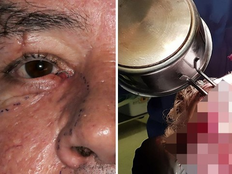 Man slips and pierces his face with a pan after drunken kitchen stumble