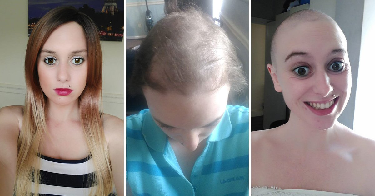 Woman with compulsive hair pulling disorder ditches wigs to embrace her beauty