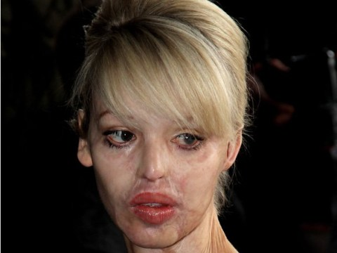 Acid attack victim Katie Piper turned to drink 'to be anybody else'