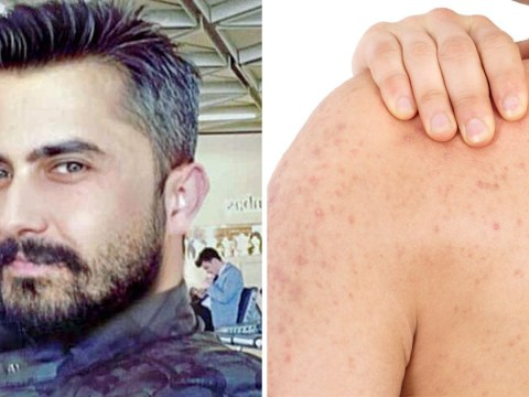 Wife busts cheating husband after finding another woman had popped his pimples