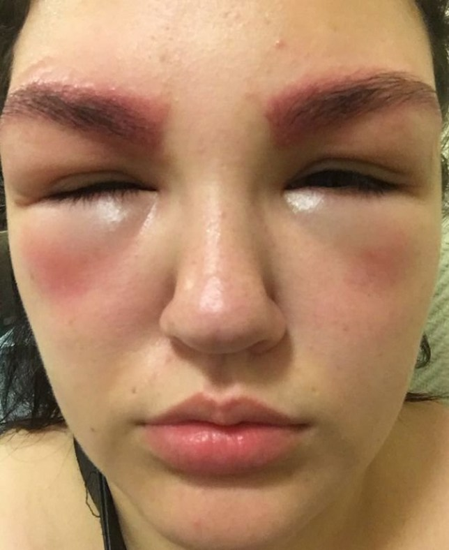 A young mum has told how her eyes swelled shut after an allergic reaction to an eyebrow tint - which left her ?too ashamed to go outside?. Hannah Corrigan said she was forced to wear sunglasses for a week after visiting a Birmingham salon on May 27. caption: Hannah's eyes were swollen completely shut 24 hours after the treatment