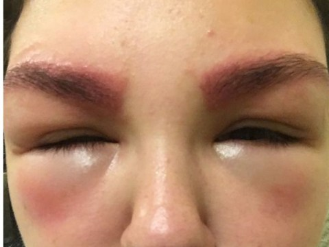 Mum 'too ashamed to go outside' after eyebrow tint swelled her eyes shut