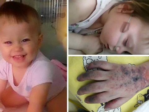 Mum shares devastating pictures of daughter's slow death from measles