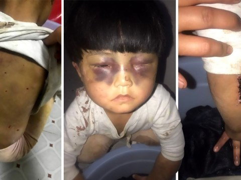 Heart-breaking images of little girl 'beaten by father' and left chained to toilet