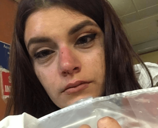 Naomi Robinson Young woman punched in face by man she turned down in nightclub BPM Media
