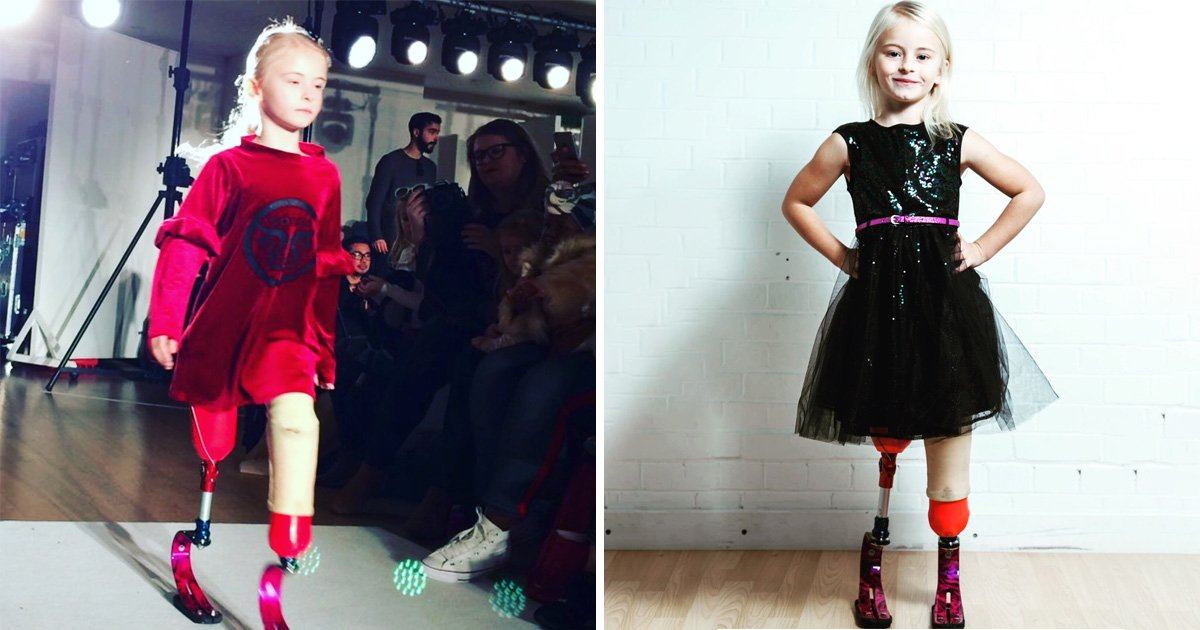 The Little Girl With No Legs And Big Dreams
