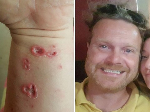 Man shows blistered skin after he was doused with sandwich bag full of acid