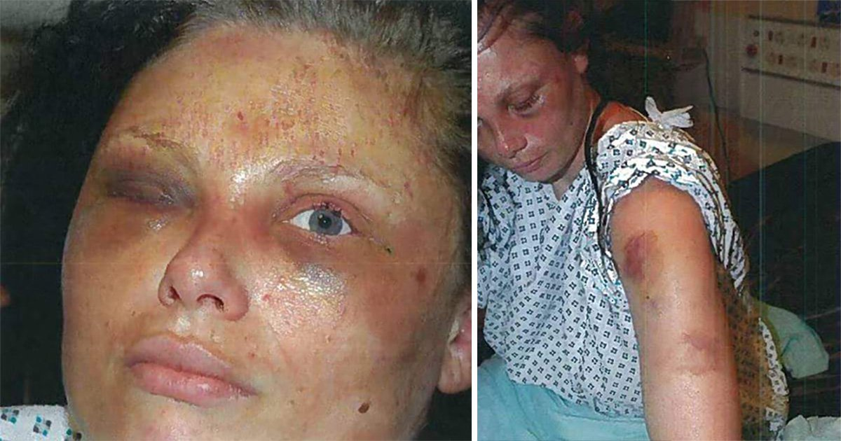 Victim of 'worst domestic violence case ever' says police did nothing to help