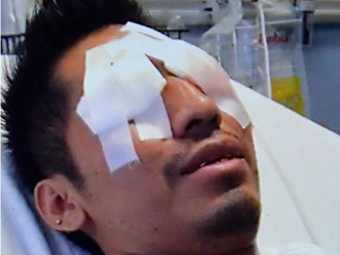 Exploding Corona bottle blinds barman in one eye
