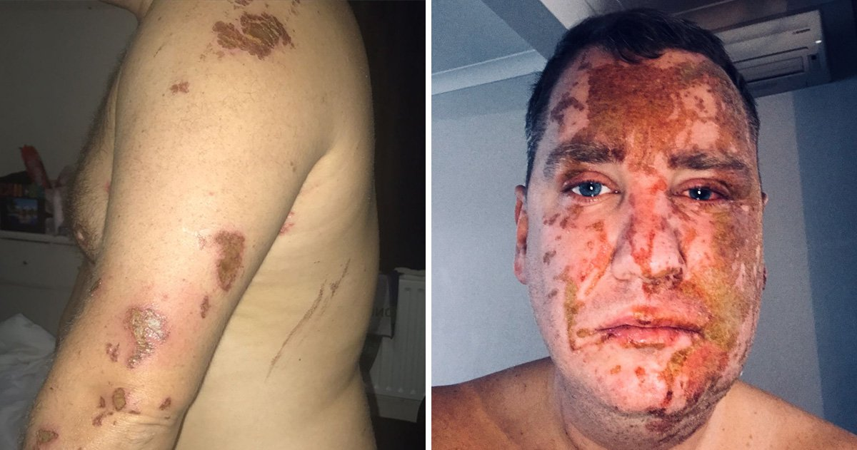 What to do in an acid attack to help yourself and others